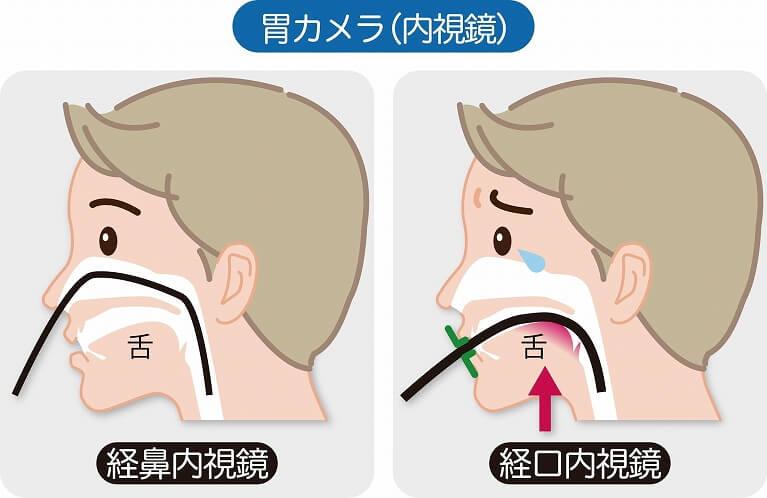 苦痛を抑えた鼻からの胃カメラ検査